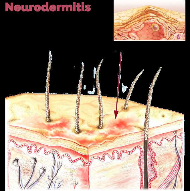 Neurodermitis bei Babys 1 edited